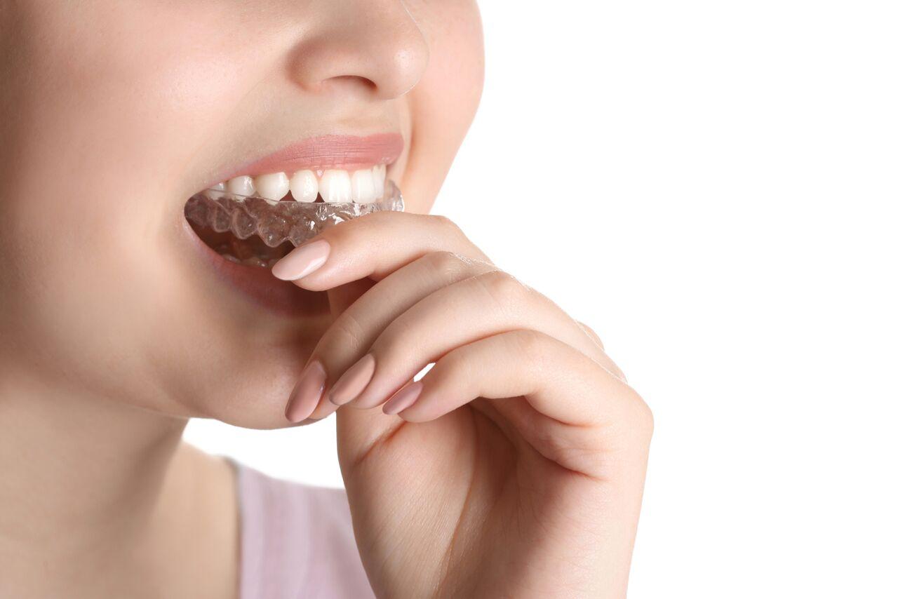 tmj dentist melbourne