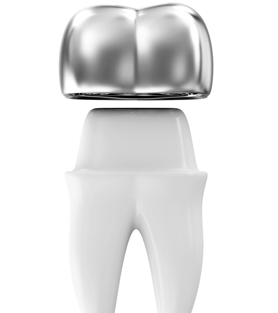 dental bridges melbourne