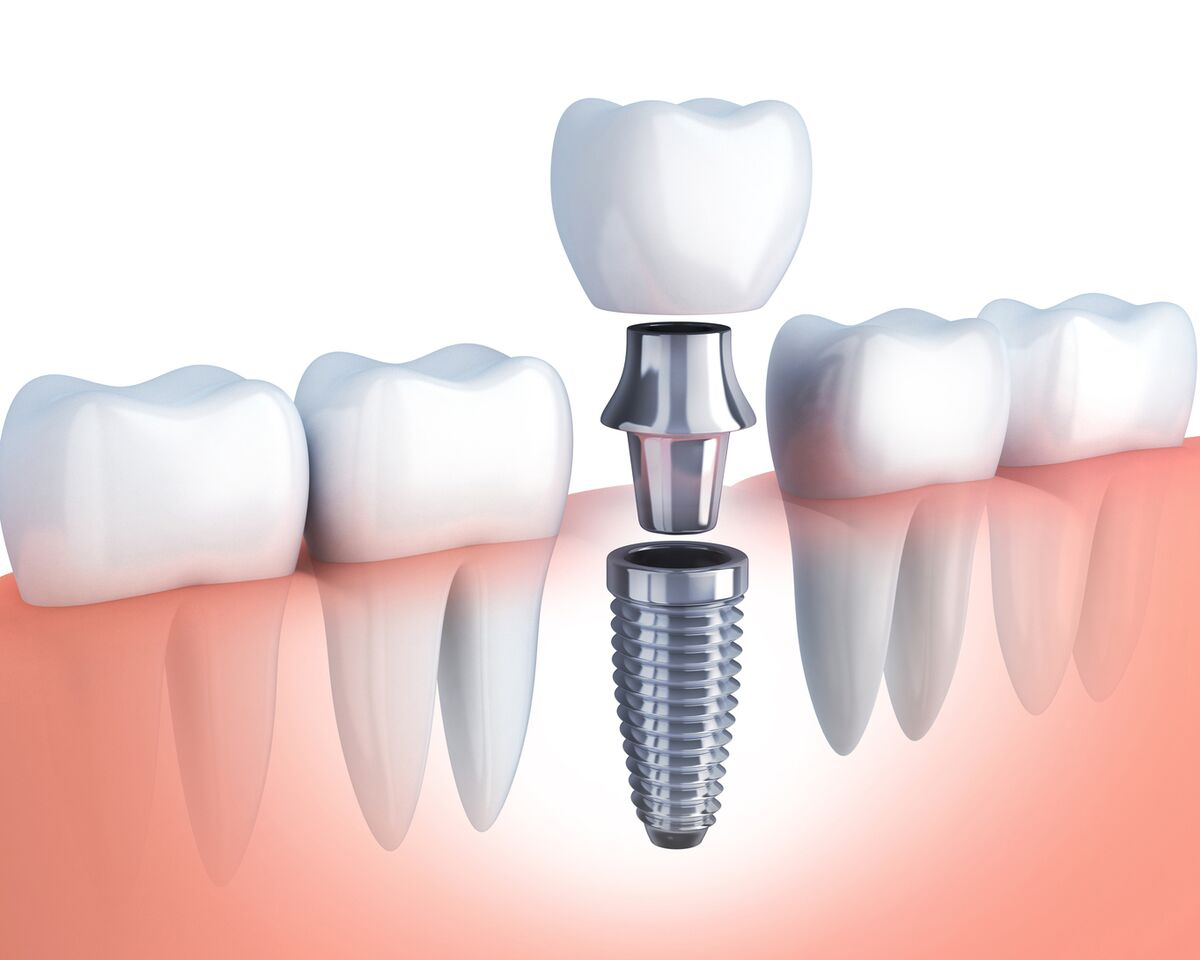 dental implants melbourne